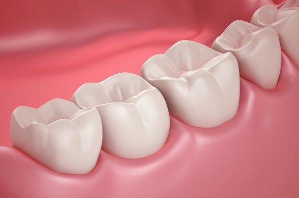 محلول پاکسازی ریشه دندان فراوری شد، یاری به تأمین تجهیزات دندانپزشکی