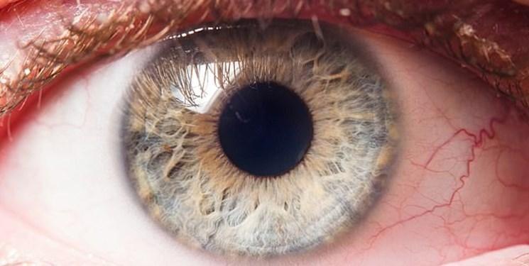 نگاه به چشم ها راهی برای تشخیص آلزایمر