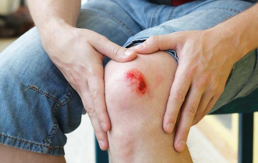 علائم عفونت زخم یا خراشیدگی را بشناسید