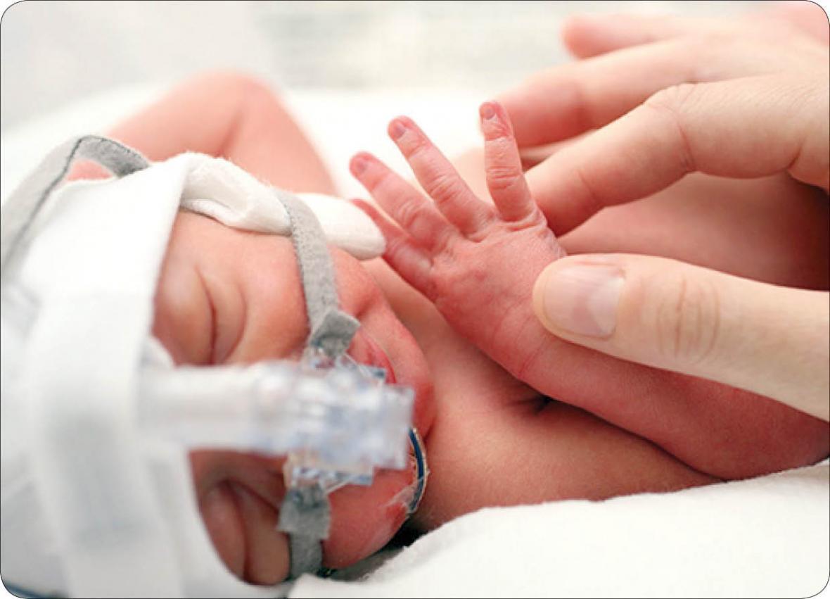 ضرورت مراقبت از بینایی نوزادان نارس