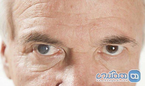 تفاوت آب سیاه چشم با آب مروارید چیست؟