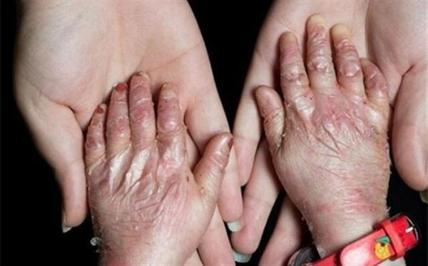 شناسایی بیش از 8هزار نوع بیماری نادر در جهان