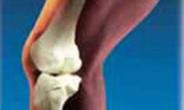 استئوآرتریت (بیماری دژنراتیو مفصل )